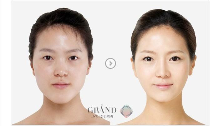 1 Dari 5 Wanita Korea Lakukan Operasi Plastik, Ini Reaksi Para Netizen